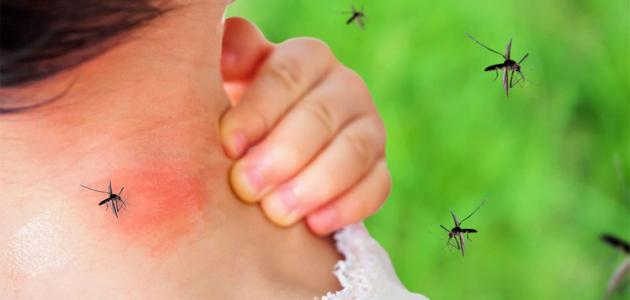 علاج حمى الضنك موسوعة انا عربي